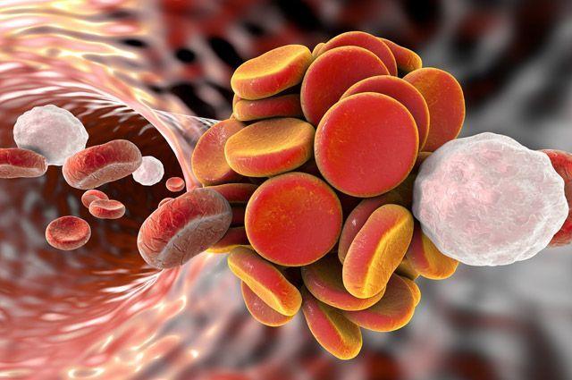 Как разжижать кровь без медикаментов и врачей