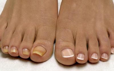 Грибок ногтя — безопасное лечение народными средствами