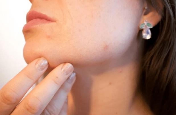 Плоские бородавки - причины появления, медикаментозные и народные методы лечения