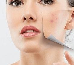Плоские бородавки — причины появления, медикаментозные и народные методы лечения