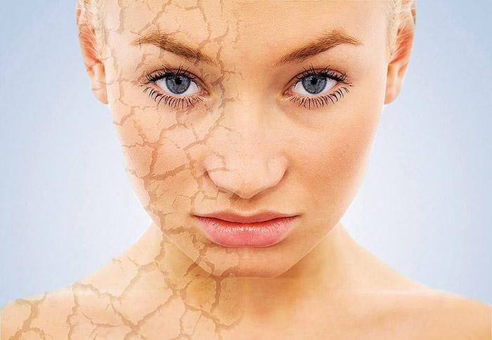 сухая кожа лица и причины